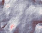 akupunktur bluthochdruck