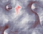 rheuma fieber künstliche hüfte