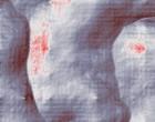 hüfte arthrose