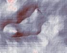 rheuma symptome klinik