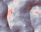 rheuma medikament krebs