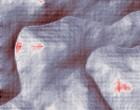rheuma test akupunktur schwangerschaft