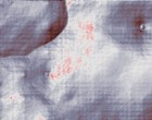 arthrose schulter