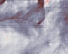 www rheuma online künstliches hüftgelenk