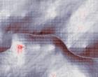 rheuma check endoskopie krankenhaus