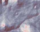 rheuma check schleimbeutelentzündung hüfte